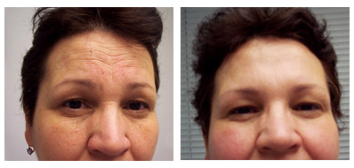 Before/After cosmetic treatment